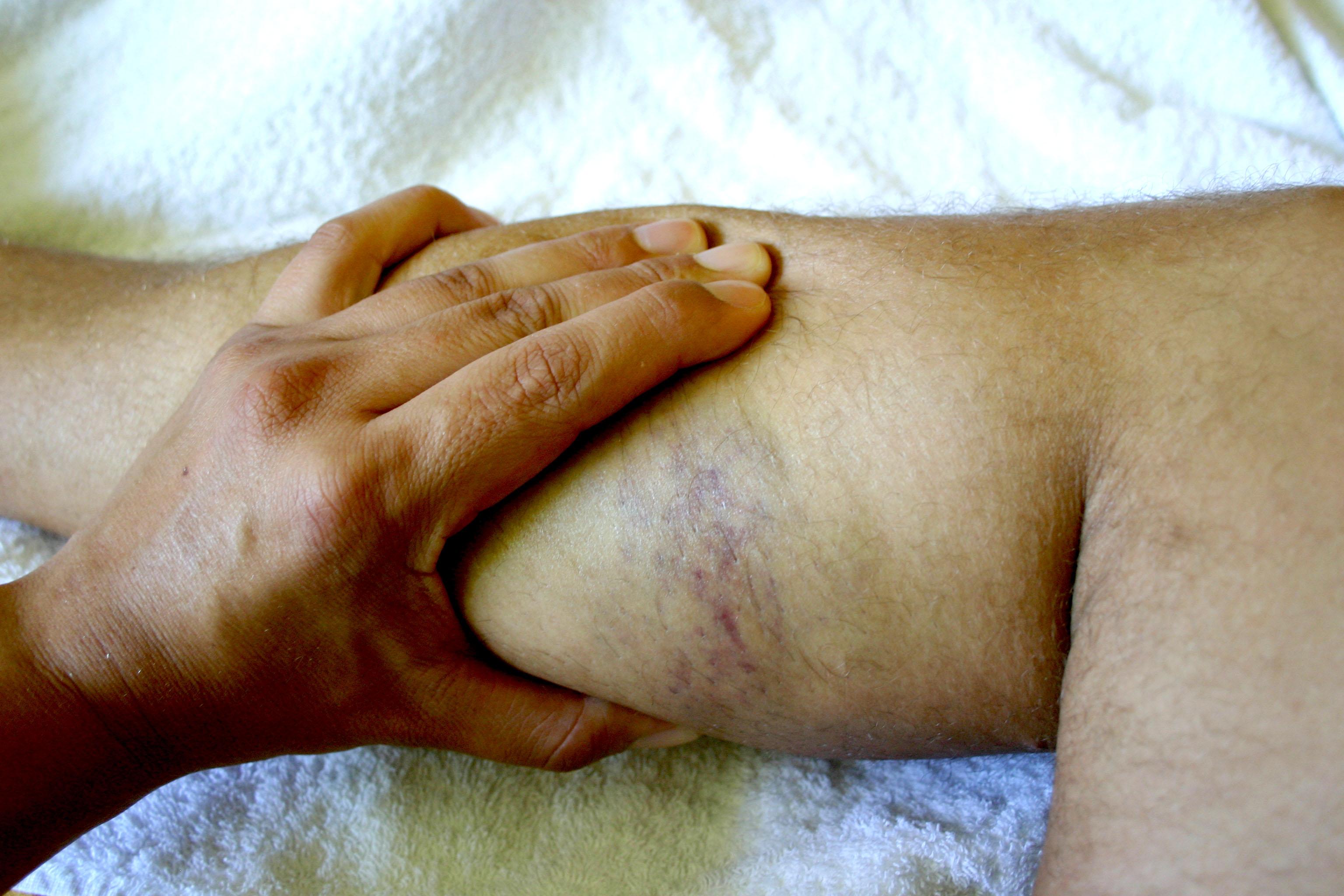 Oberschenkel im wie erkennt man muskelfaserriss einen Muskelfaserriss